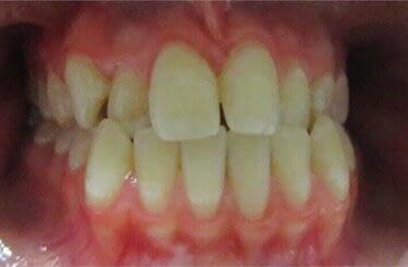 orthodontics treatment melbourne
